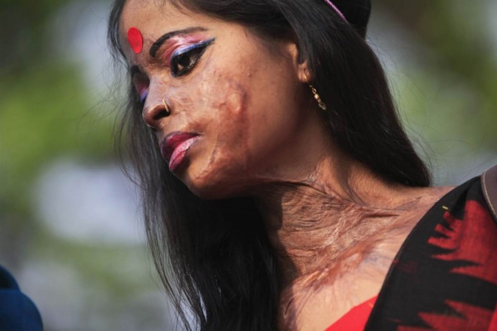 acid-attack-victim-1024x682